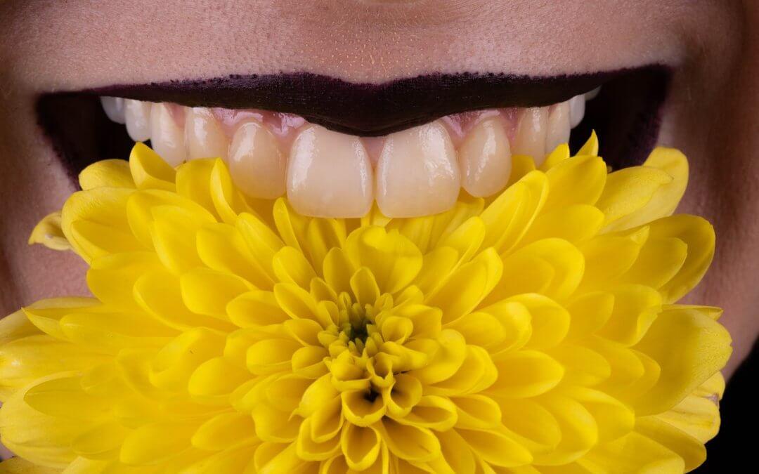 Overlays Vs Coroa Dentária