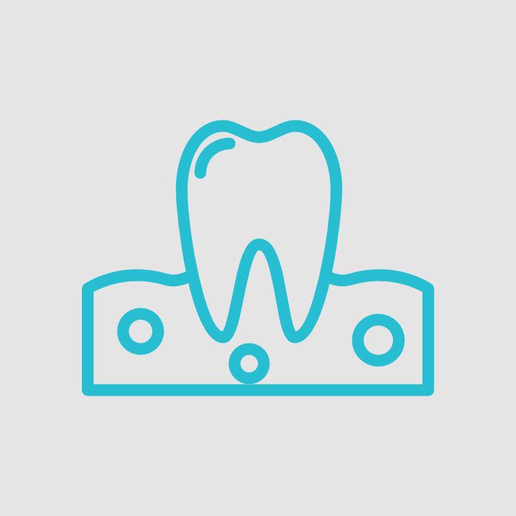 doenças das gengivas periodontologia