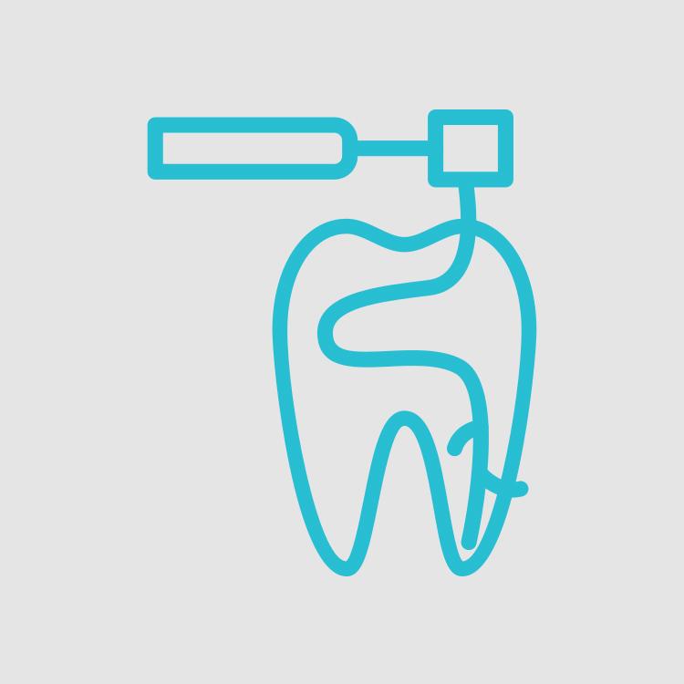 tratamento de canal endodontia