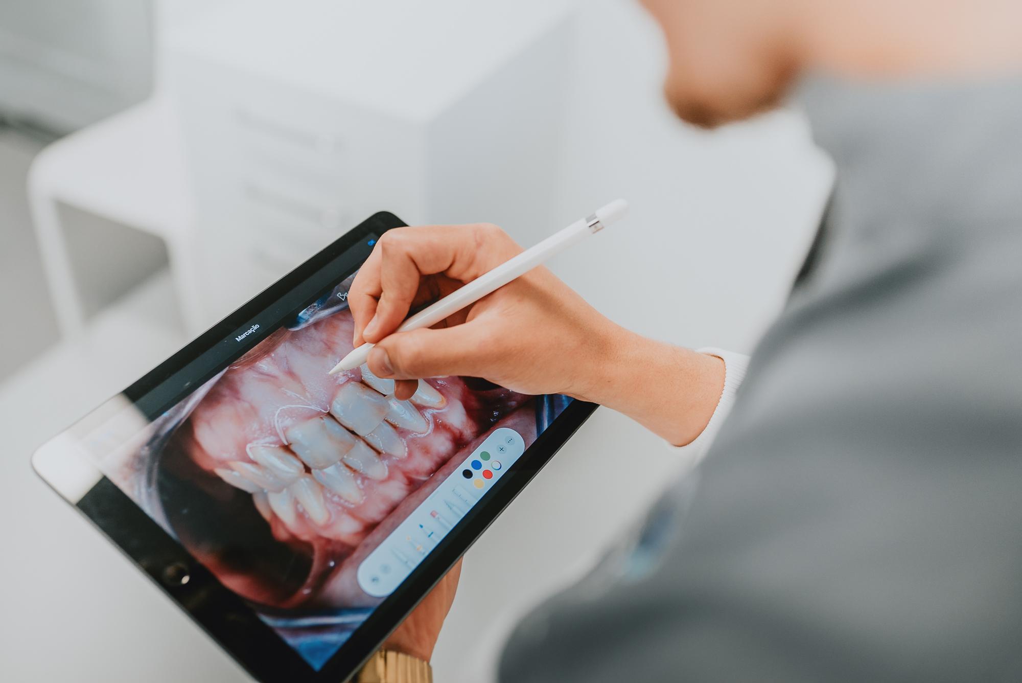 Branqueamento Dentário – 7 Questões Que Deve Saber